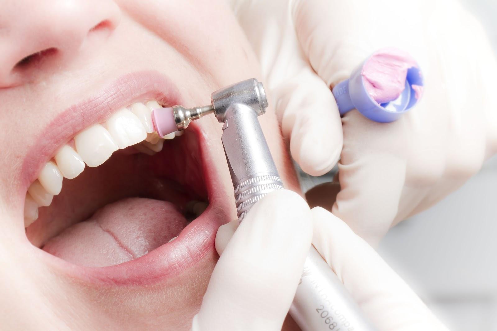 Проф гигиеническая чистка зубов