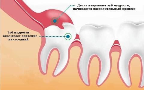 Удаление зуба мудрости № 2
