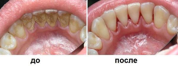Ультразвукова чистка зубів