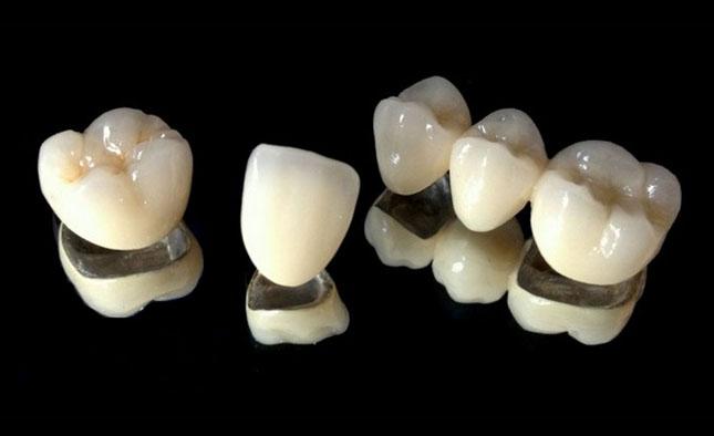 Мостоподібні зубні протези