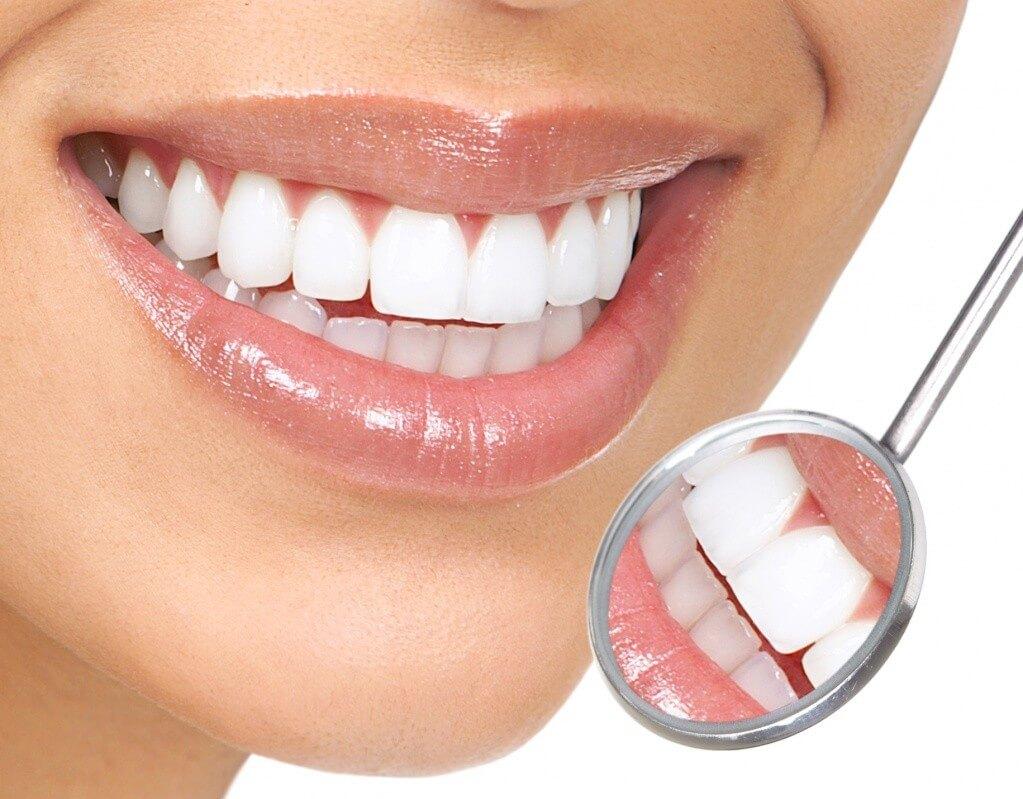 Професійна чистка зубів