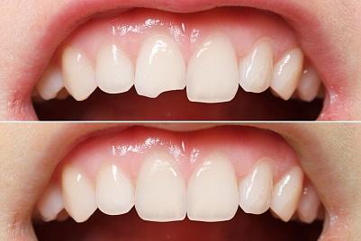 Пломбирование зубов № 3