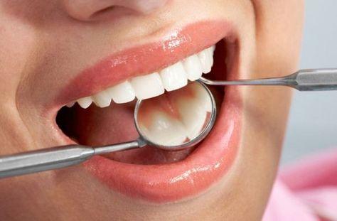 Пломбирование зубов № 2