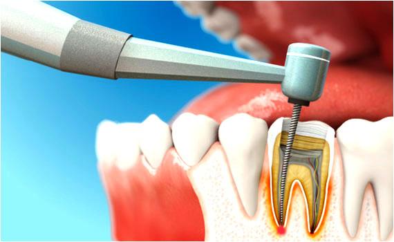 Лікування каналів зуба