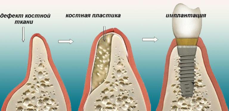 Відновлення кісткової тканини щелепи № 2