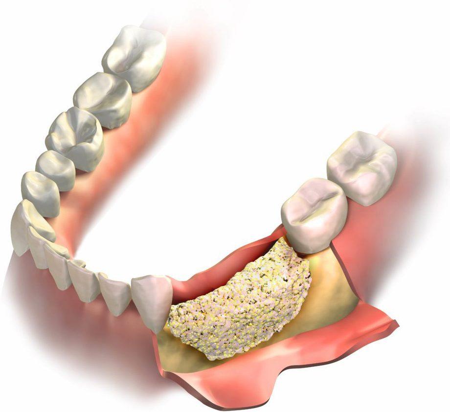 Відновлення кісткової тканини щелепи
